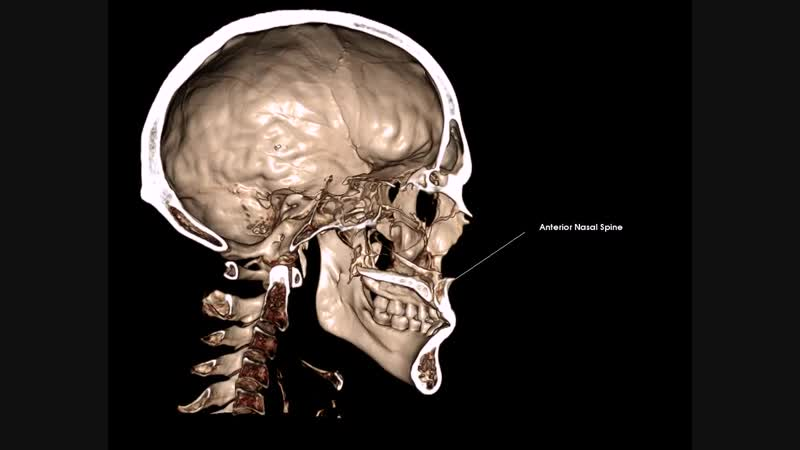 Anterior Nasal Spine (Sna) - передняя носовая ость