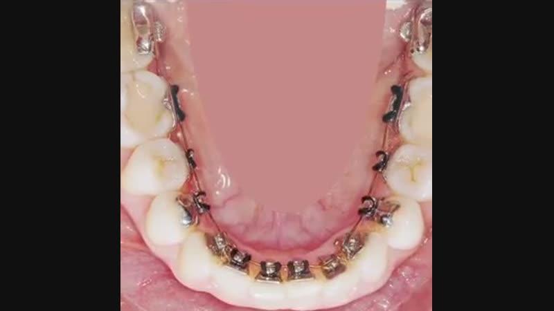 Невидимые брекеты WIN при скученности зубов mp4