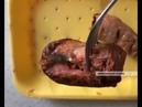 Семья из Уфы обнаружила в сосиске иглу от шприца