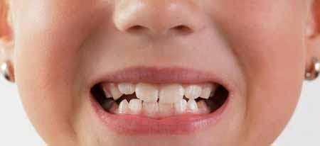 Педиатрические стоматологи могут дать совет относительно рутины для хорошего зубного здоровья.