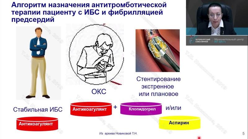 Кардиолог Новикова Т.Н.: Ведение коморбидных пациентов во время и после острого коронарного синдрома