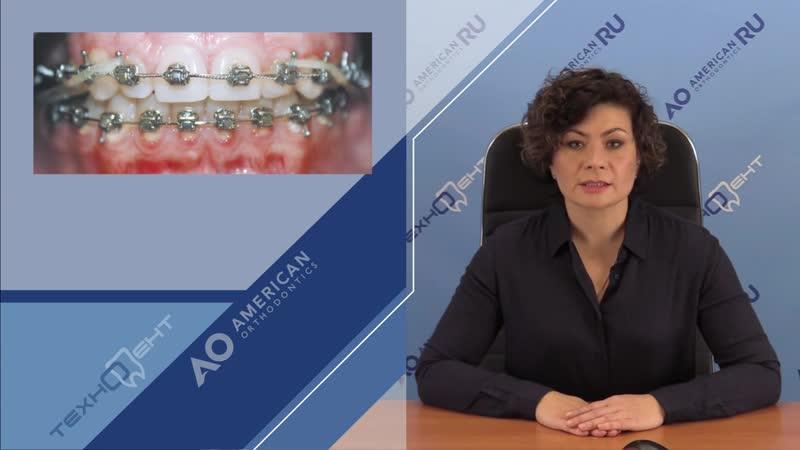 Выбираем брекет систему ГИГИЕНА Ортодонтия Игнатьева Эмма Юрьевна
