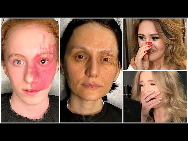 Most Touching Makeup Transformations 💖 The Power of Makeup