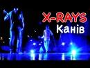 X Rays Канів 2018