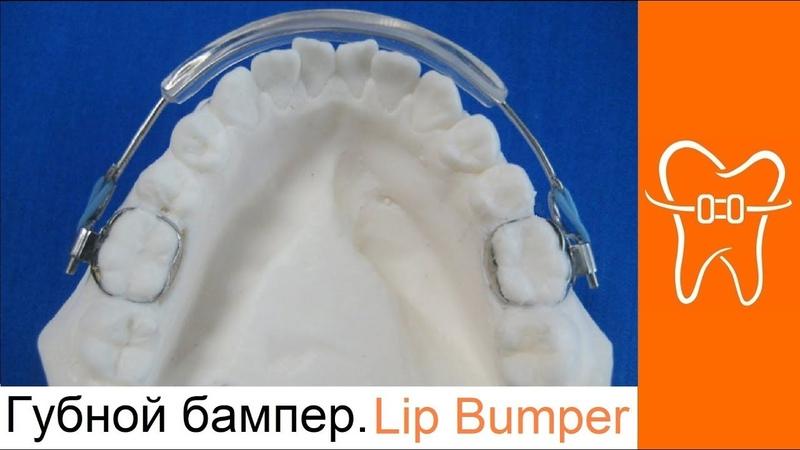 Ортодонтические аппараты. Губной бампер. Оrthodontic appliances. Lip bumper.