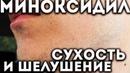 Миноксидил сухость и шелушение кожи и бороды 3 способа