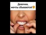 Виниры Perfect Smile