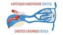 Каротидно кавернозное соустье Carotico cavernous fistula