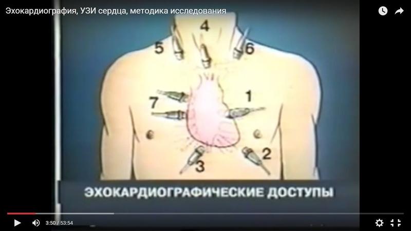 Эхокардиография, УЗИ сердца, методика исследования