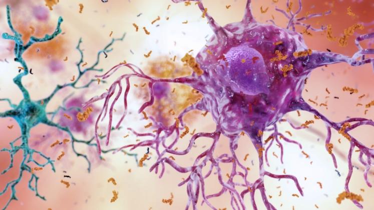 Как связаны бактерии, вызывающие заболевание десен и болезнь Альцгеймера?