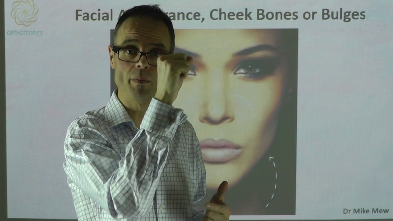 Facial Appearance, Cheek Bones or Cheek Bulges By Dr Mike Mew