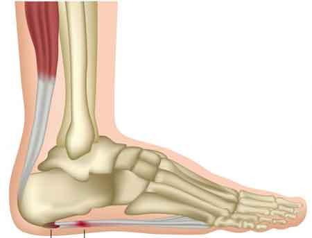 Боль от жжения подошвенного фасциита вызвана воспалением опорных структур стопы.