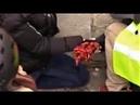 Un Jeune Gilet Jaune A Eu La Main Arrachée à Paris IMAGES CHOQUANTES PUBLIC AVERTI 09 02 19