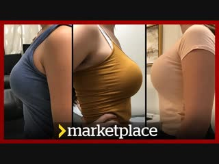 Shopping for breast implants - hidden camera investigation (Marketplace)