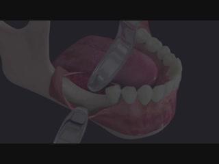 BIONER. Implante Short DM. Fresado SECURE.