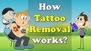 How Tattoo Removal works aumsum kids education
