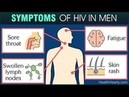Do I Have HIV Early HIV Symptoms
