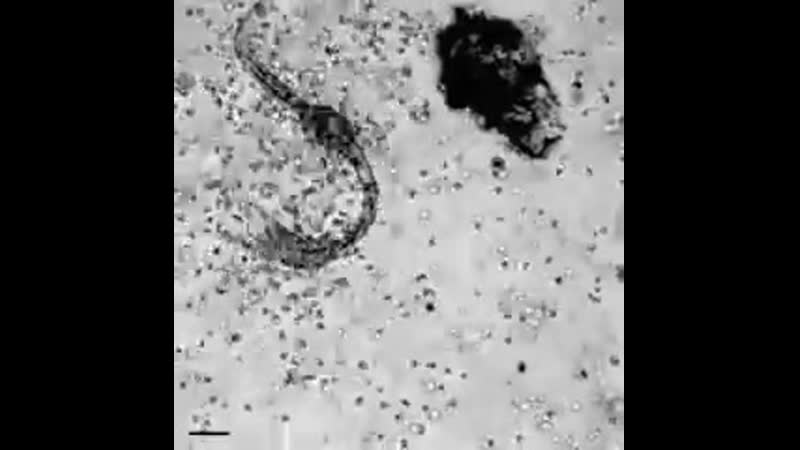 Лейкоциты избивают паразита