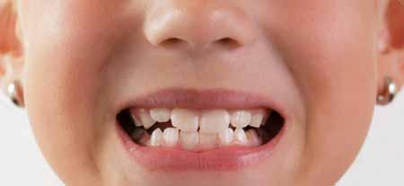 Композитная смола может быть произведена в различных оттенках белого, чтобы соответствовать естественному цвету зубов пациента