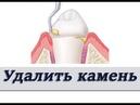 Что будет если не чистить зубной налет и камень Пародонтология Стоматология