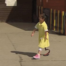 This seven-year-old girl shows friends her new prosthetic leg for the first time and their reaction is beautiful. - Create, Discover and Share Awes...