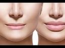 увеличить_губы кисетные_морщины Делаем губы объёмными и убираем морщины вокруг рта.