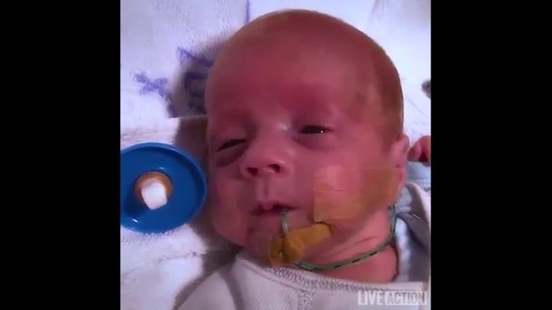 Маленький Тоби родившейся на 24 неделе