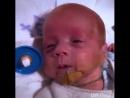 Маленький Тоби, родившейся на 24 неделе