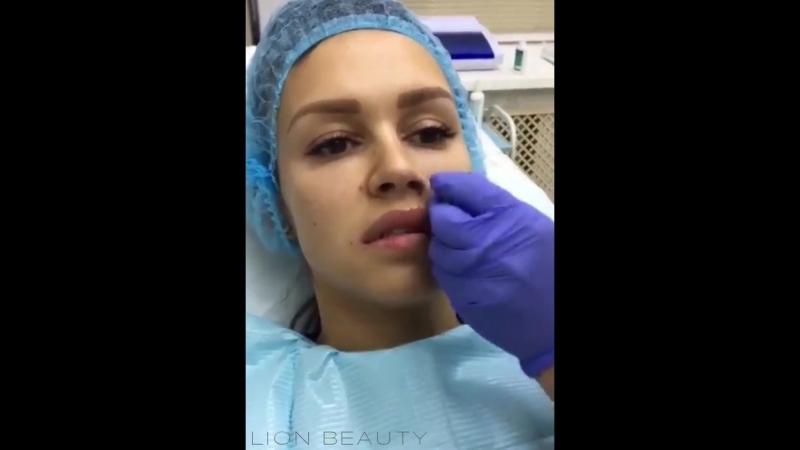 Коррекция носогубных складок препаратом на основе гиалуроновой кислоты