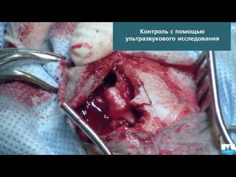 Удаление менингиомы головного мозга