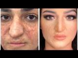 Азербайджанский стилист преобразил очередную девушку с обожженным лицом. Азербайджан Баку Карабах Azerbaycan Baku Макияж красота