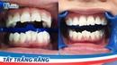 Quy trình Tẩy trắng răng tại phòng khám Nha khoa Paris