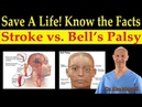 Save a Life! Know the Facts of Stroke vs. Bells Palsy Natural Remedies - Dr. Alan Mandell, D.C.
