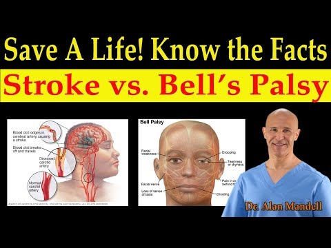 Save a Life! Know the Facts of Stroke vs. Bell's Palsy (Natural Remedies) - Dr. Alan Mandell, D.C.