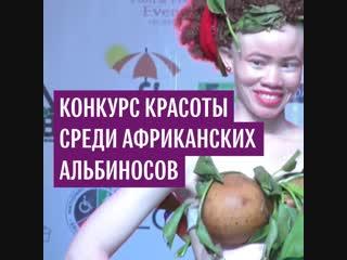 Конкурс красоты среди африканских альбиносов