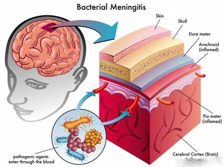 Бактериальная инфекция менингита, которая формируется в головном и спинном мозге, является одной из распространенных причин опистотонуса, который врачи должны устранить.