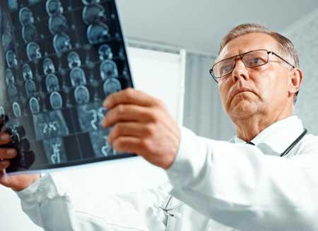 Опухоли головного мозга могут вызывать опистотонус.