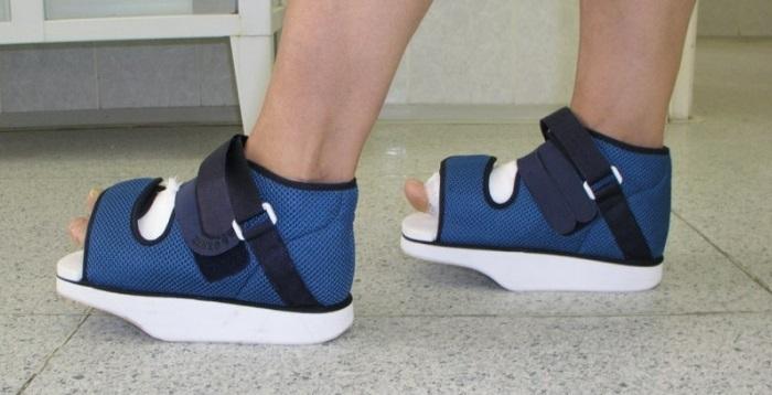 Какие бывают виды ортопедической обуви?