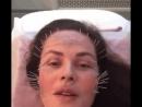 Иглоукалывание лица