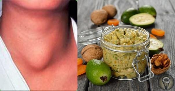 Лучшие рецепты народной медицины от болезни щитовидной железы