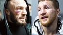 Травма Минеева и возмущение Исмаилова Владимир и Магомед после боя
