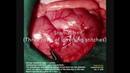 Щенок немецкой овчарки проглотил ленту для волос хирургическое удаление A German Shepherd Puppy swallowed a hairband surgical removal