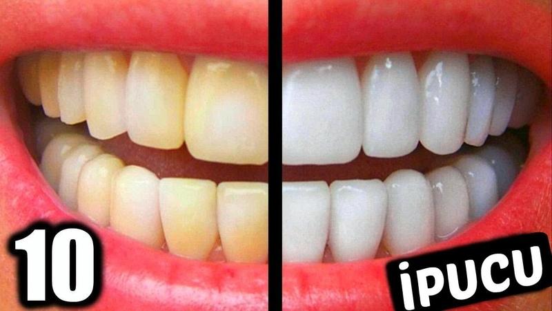 EVDE ANINDA DİŞ BEYAZLATMA 5 Dakikada Bembeyaz Dişlere Sahip Olun