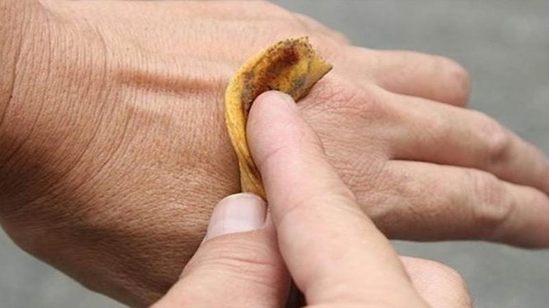 Вот что произойдет, если положить банановую кожуру на кожу и оставить на ночь.