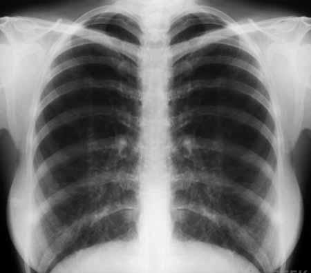 Рентгенография грудной клетки может выявить расположение и тяжесть рубцов на ткани