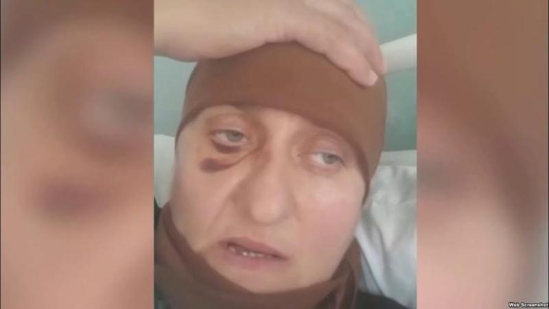 В Калмыкии избита Чеченка Табарик Дудаева