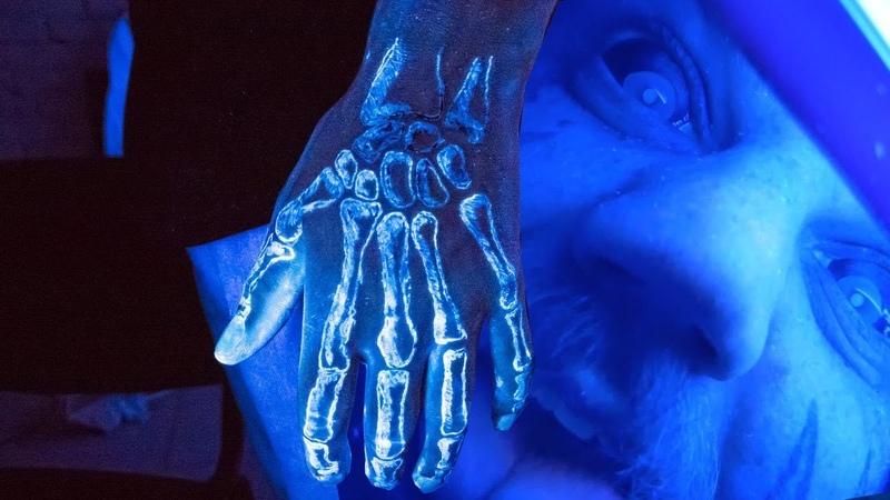 Светящаяся РЕНТГЕН ТАТУ ОБЛУЧИЛИ РУКУ рентгеном