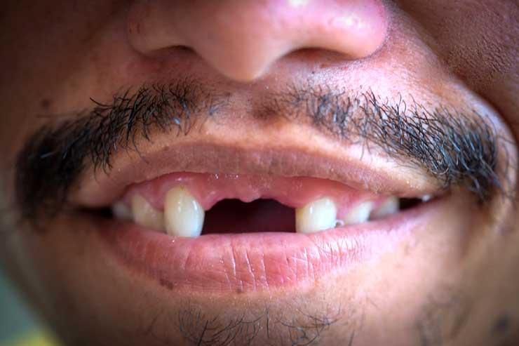 Как давно придумали и создали искусственные зубы