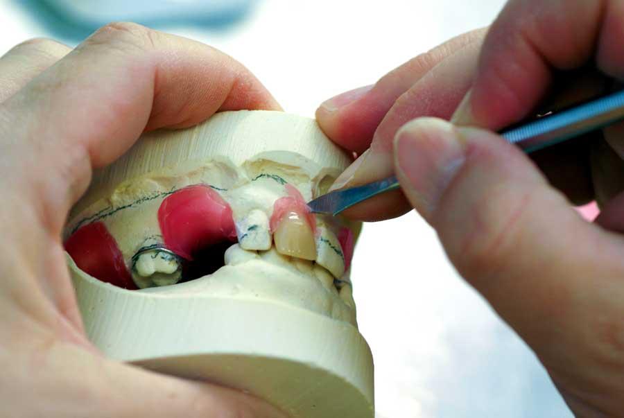 История создания вставных зубов