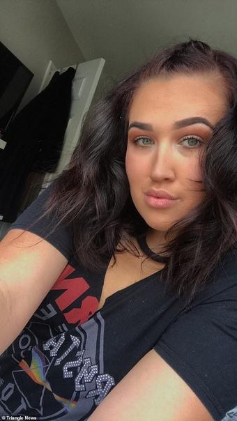 Девушка снимала акриловые ногти в романтической атмосфере 19-летняя Майя Эдвардс из города Лестер, Британия, попала в больницу с ожогами третьей степени после крайне неудачной попытки снять